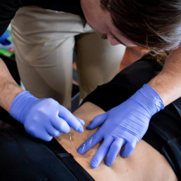Dry Needling Comprehensive Colorado Lakewood